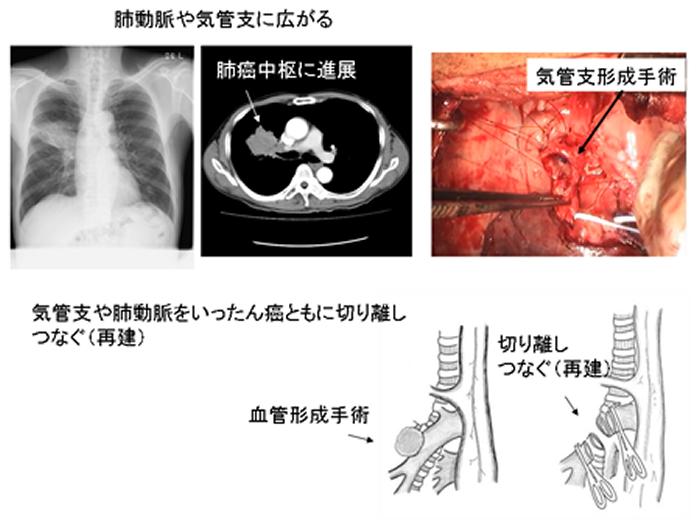 治療 肺がん 初期